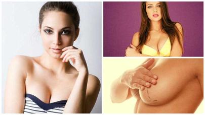 Salvo complicaciones, los implantes mamarios no tienen por qué cambiarse.