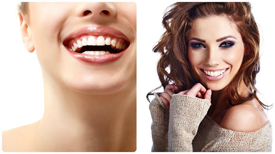 Una duda frecuente es si colocar un implante o hacerse una endodoncia en Alicante.