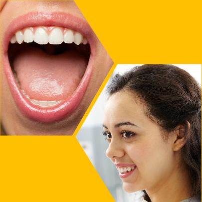 Cuando las caries son de una gran profundidad, se recomienda este tratamiento para evitar la extracción dental.