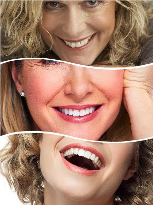 Se recurre a los implantes cuando por cualquier circunstancia ya no se dispone de las piezas dentales originales.