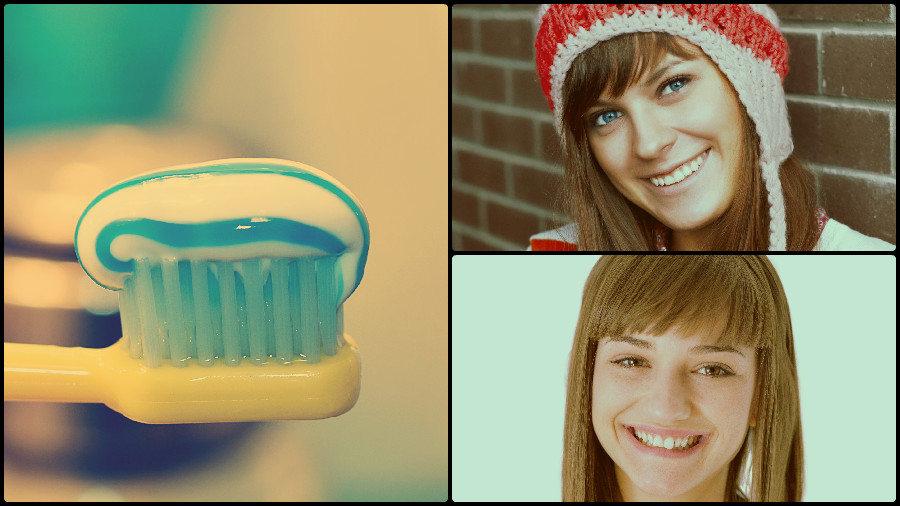 Atornilladas y cementadas son las dos variedades principales de coronas dentales existentes.