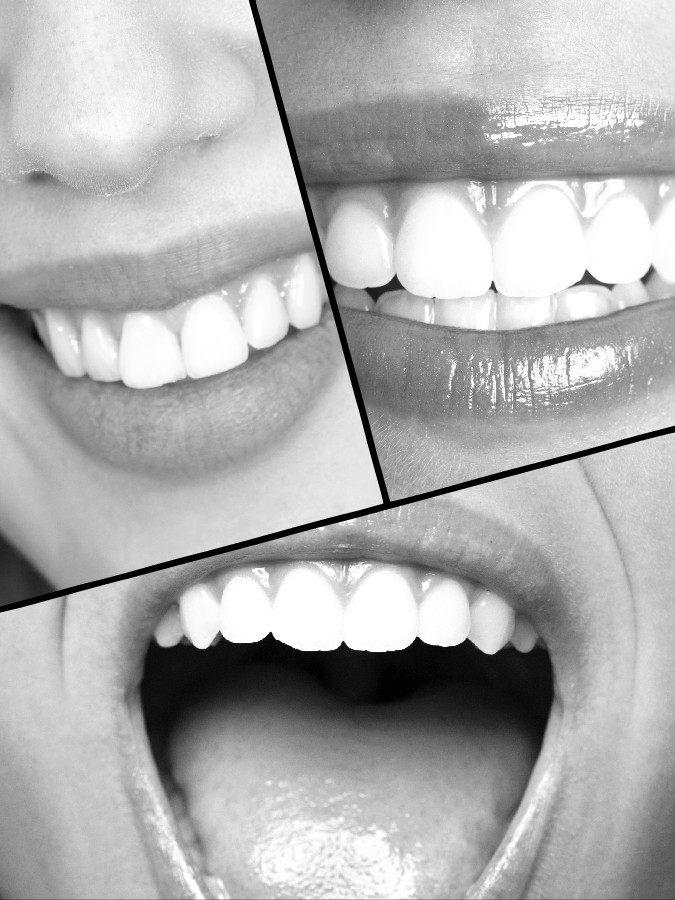Hay dos tipos de prótesis dentales: fijas y removibles.