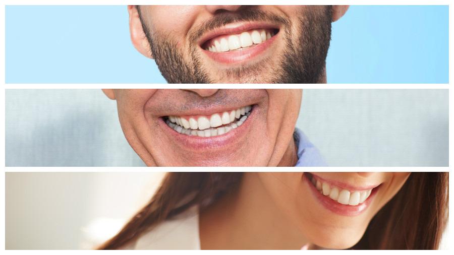 Una vez sometido a un implante dental en Sevilla, el paciente seguirá varias indicaciones para minimizar posibles riesgos.