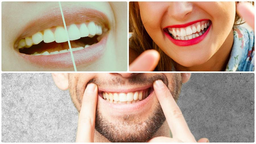 El tratamiento de coronas dentales presenta una serie de ventajas adicionales al implante dental en Sevilla.