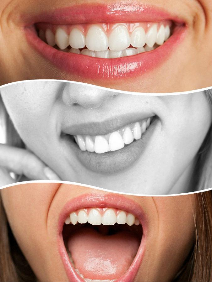 Las coronas dentales también pueden aplicarse tras el tratamiento de implante dental en Valencia.