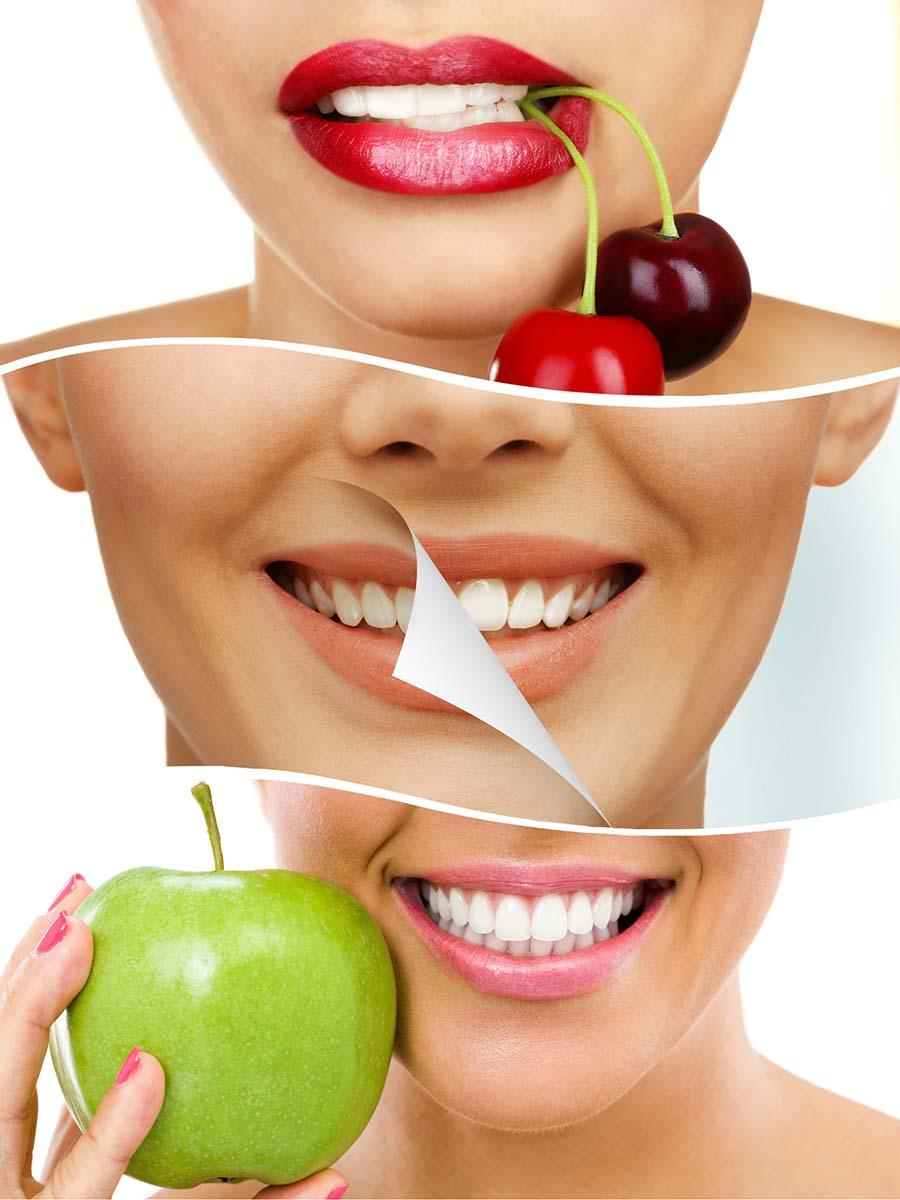 El ortodoncista indicará qué alimentos debe evitar durante el tratamiento con invisalign en Córdoba.