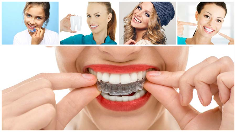 El invisalign en Madrid es un tipo de ortodoncia estética pensada para los adultos.