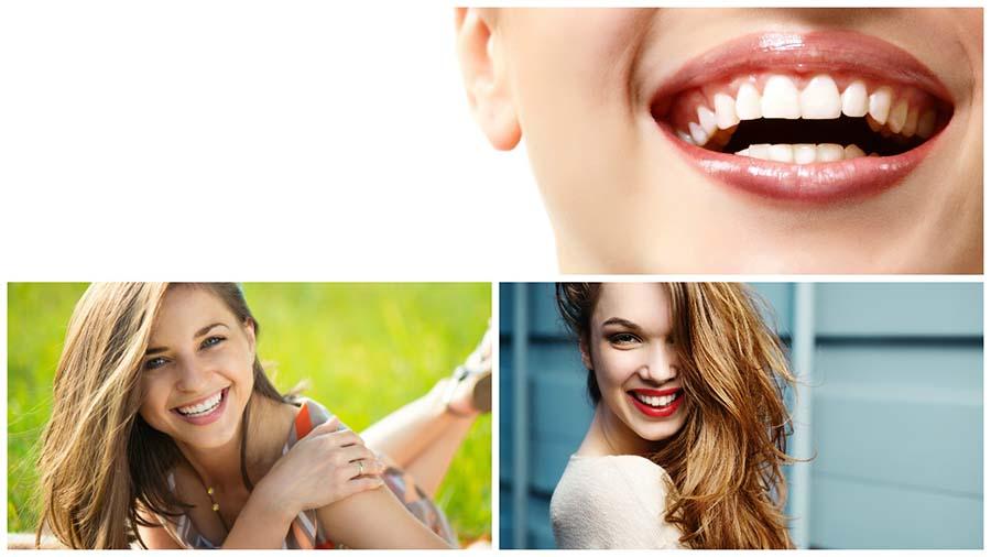 La técnica invisalign se recomienda para corregir la posición de los dientes en adultos y adolescentes.