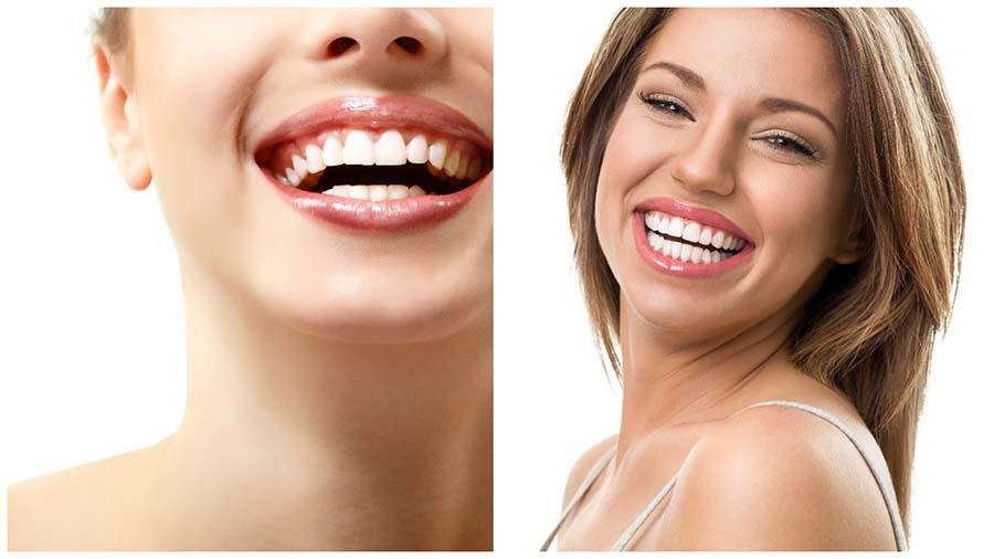 La ortodoncia invisalign en Valencia ha revolucionado la estética dental.