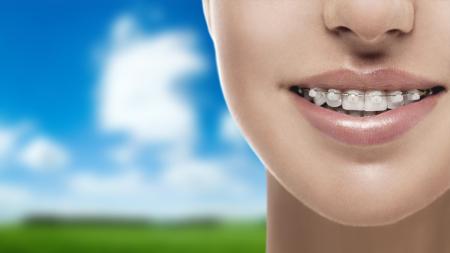 Existen diversos tipos de ortodoncia entre los que puedes elegir el que mejor se adapte a ti.