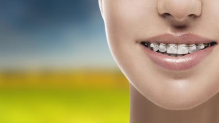 Cada clase de aparatos de ortodoncia posee sus ventajas e inconvenientes.