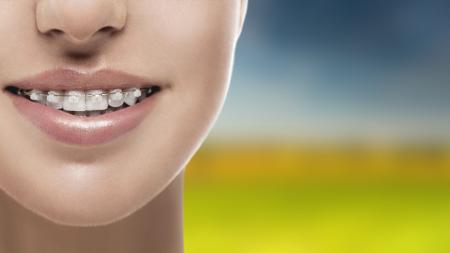 Los diferentes tipos de brackets o aparatos de ortodoncia poseen numerosos beneficios.