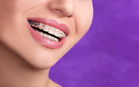 No existe una edad determinada para comenzar un tratamiento de ortodoncia.