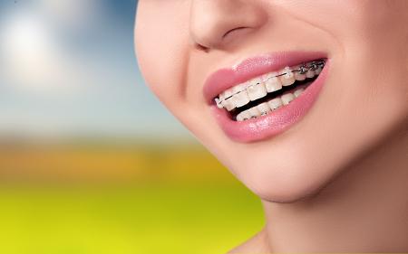 Existen diferentes clases de ortodoncia para que puedas elegir aquella que te conviene más.