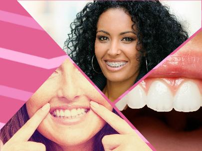 Después de someterse a una ortodoncia en A Coruña hay que seguir ciertos cuidados que prolonguen los buenos resultados de la misma.