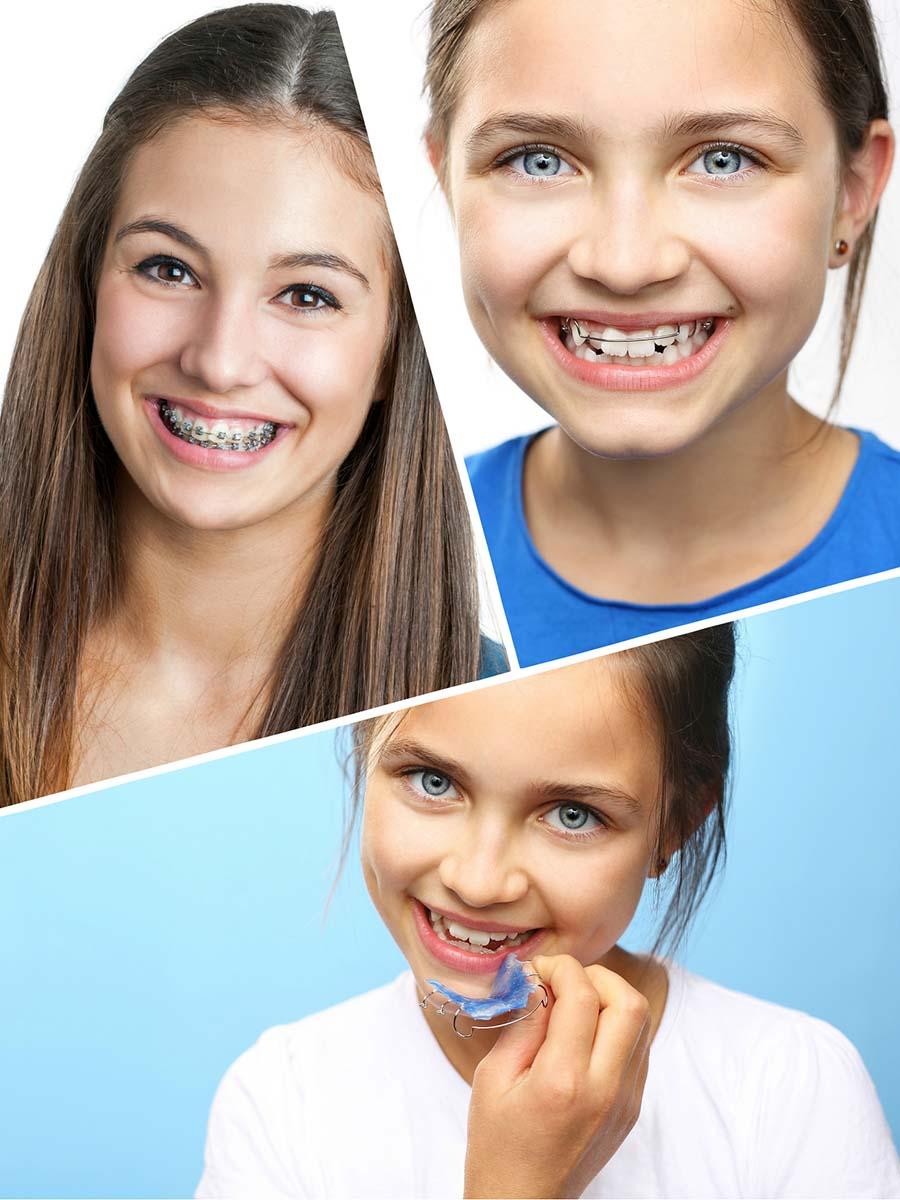 Para niños y adolescentes se recomienda la ortodoncia con brackets de metal.