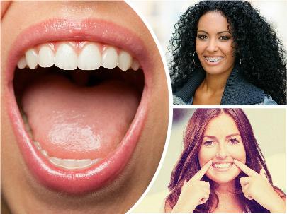 La práctica totalidad de casos de ortodoncia en Vitoria terminan siendo muy satisfactorios en cuanto a los beneficios conseguidos.