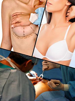 Transcurrido cierto tiempo tras la operación de aumento de pecho, la paciente podrá utilizar cualquier tipo de sujetador.
