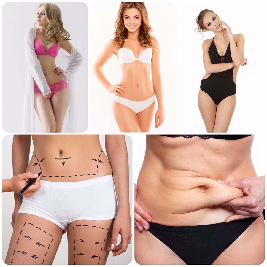 En una abdominoplastia en Barcelona se extrae el exceso de grasa, se retira la piel sobrante y se devuelve el tono a la pared abdominal.