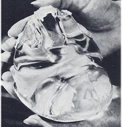 Implantes antiguos
