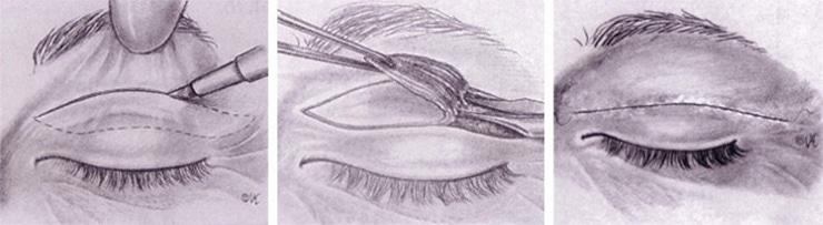 Representación gráfica de una blefaroplastia superior