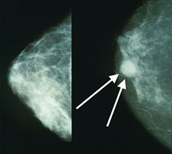 Comparación mama sana con mama cancerosa
