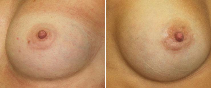 El aumento del pecho bajo el músculo las revocaciones