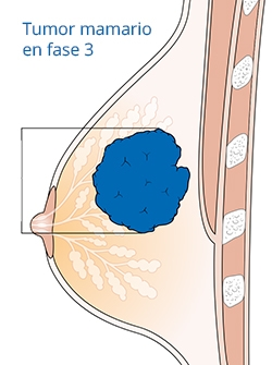 Dibujo de tumor en fase 3