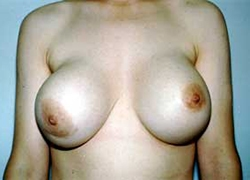 Fibrosis capsular seno derecho