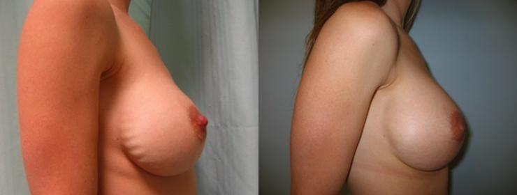 Recambio de prótesis debido a rippling