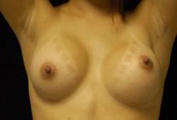 Desplazamiento de senos