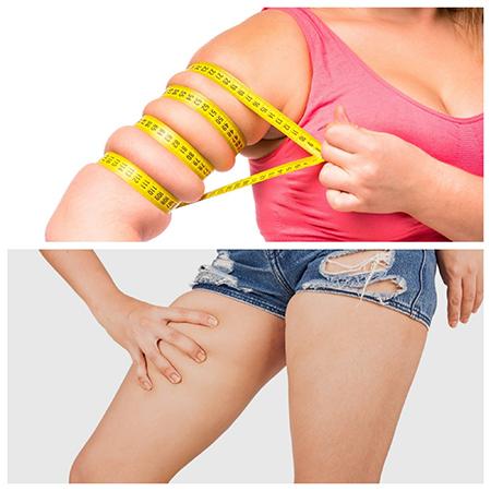 Los brazos y las piernas son dos de las partes en las que se puede extraer grasa mediante lipoescultura.