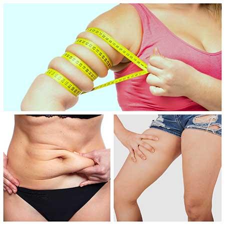 La liposucción se puede hacer también en brazos y piernas.