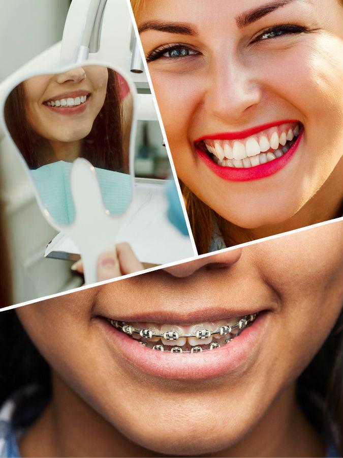 En algunos casos, tal vez haya que extraer alguna pieza dental antes de colocar el aparato de ortodoncia en Málaga.