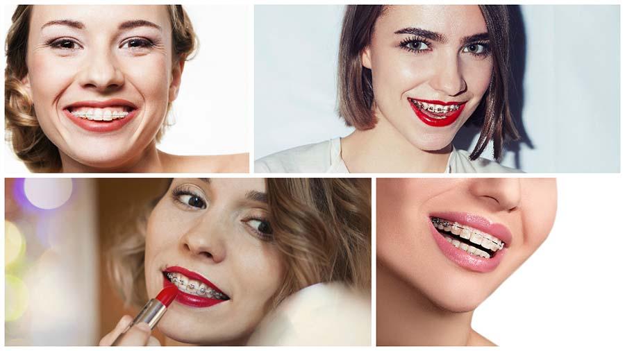 La ortodoncia en Málaga con brackets no duele, aunque al inicio puede ser molesta.