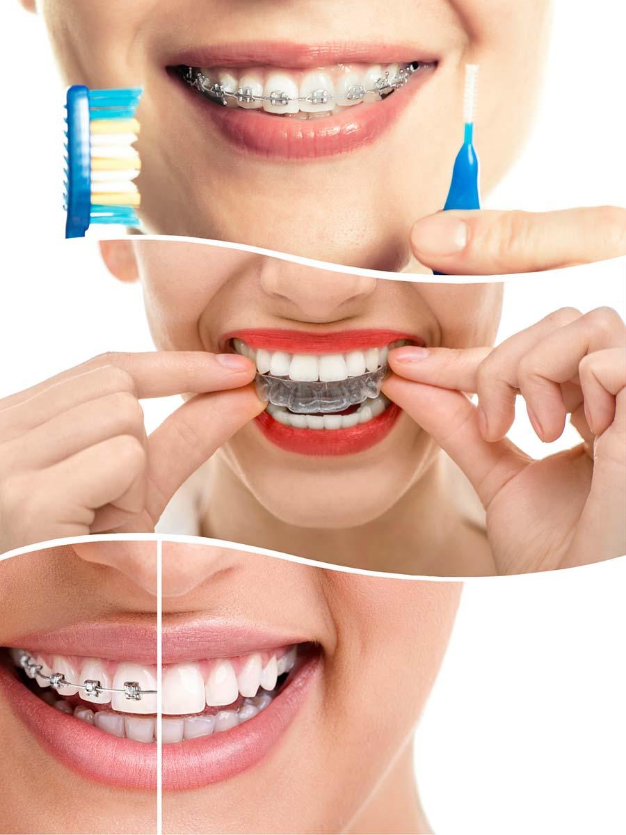 Durante el tratamiento con ortodoncia en Málaga, es fundamental la higiene bucodental.