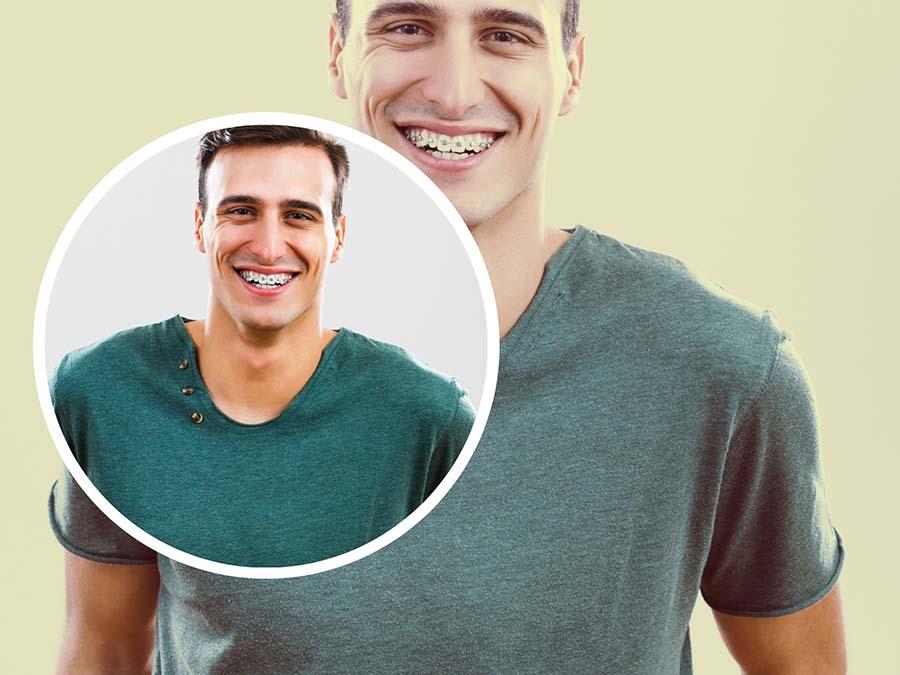 Tras la ortodoncia es posible que el especialista recomiende el uso de retenedores.