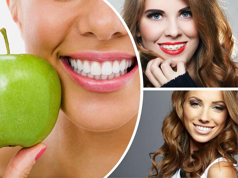 Los adultos suelen demandar aparatos de ortodoncia invisible, para cuidar la estética durante el tratamiento.