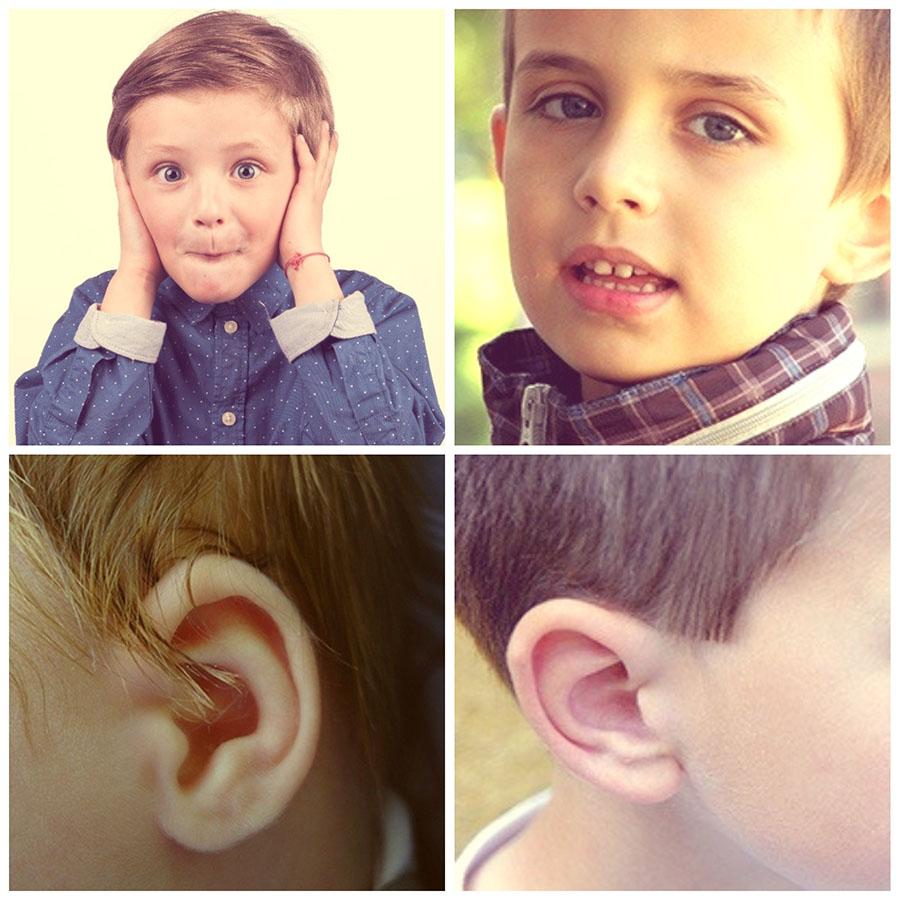 La otoplastia es una cirugía estética que se realiza con frecuencia en niños y adolescentes.