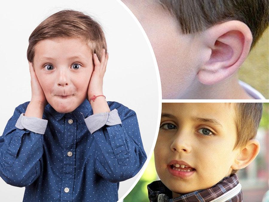 La cirugía de orejas es una de las principales intervenciones estéticas realizadas en niños.
