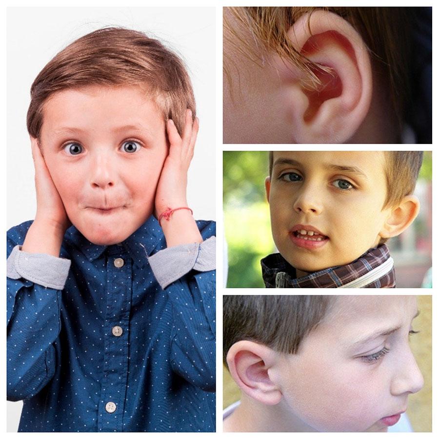 La otoplastia en Barcelona es una cirugía estética que se puede realizar en niños a partir de 8 años.