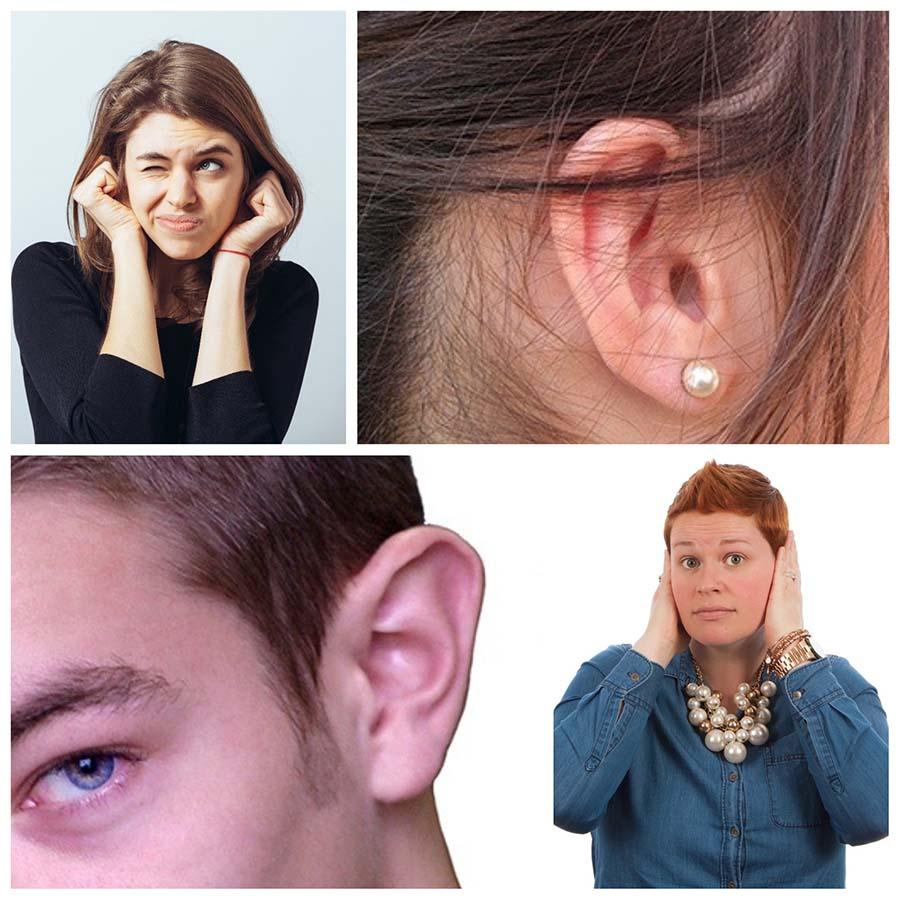 Las cicatrices son casi imperceptibles y quedan ocultas detrás de las orejas.