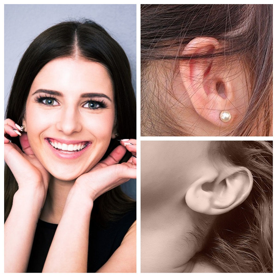Los resultados de la otoplastia son excelentes y muy satisfactorios para los pacientes.