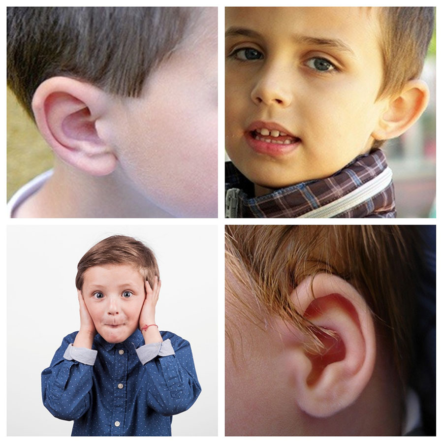 La otoplastia en Málaga es una cirugía perfectamente indicada en niños a partir de los 6 o 7 años de edad.