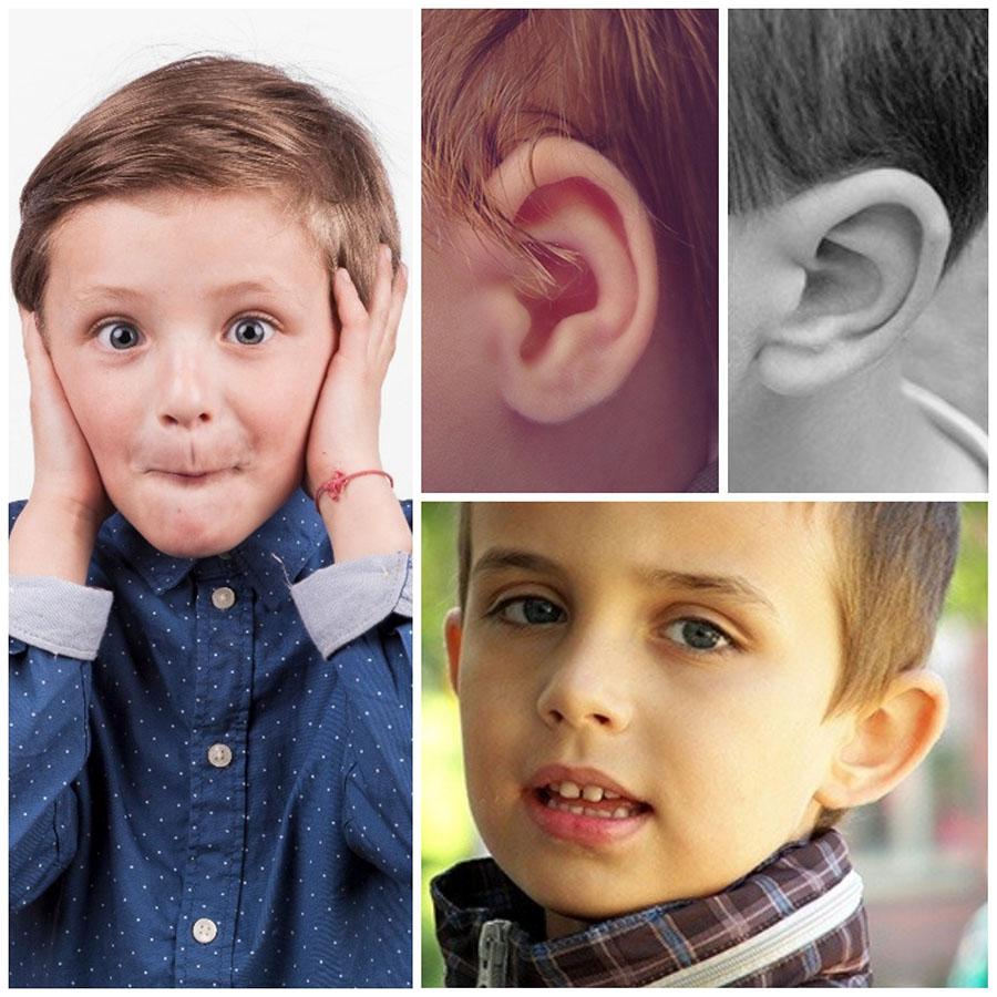 La otoplastia en Oviedo es una de las pocas operaciones estéticas que se realizan en niños.