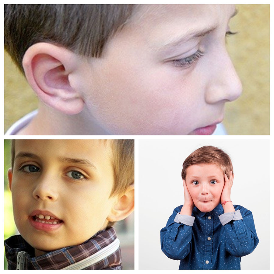 La otoplastia es frecuentemente realizada en niños y adolescentes.