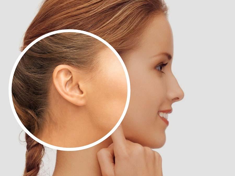 La intervención de otoplastia no perjudica a las facultades auditivas de la persona.