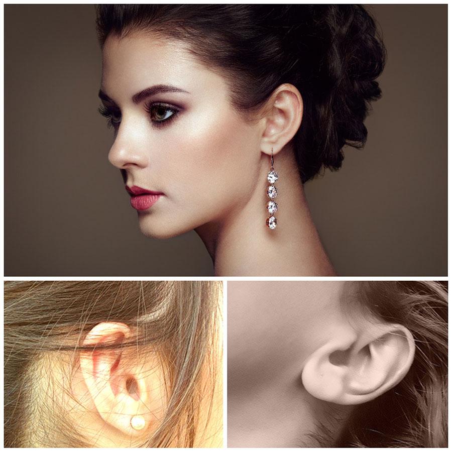 Las cicatrices de la otoplastia en Valladolid son imperceptibles, ya que se sitúan detrás de la oreja.