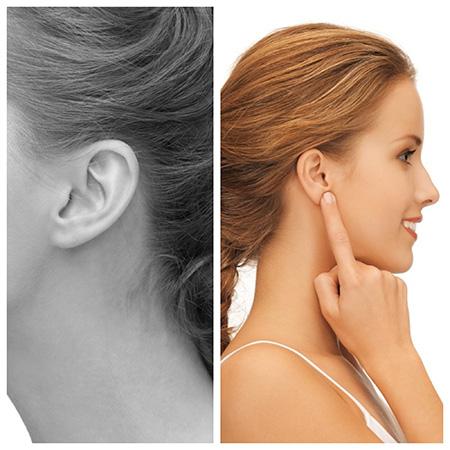 La otoplastia en Valladolid es una operación estética que persigue corregir los defectos y anomalías de las orejas.