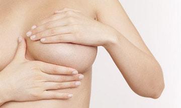 Mamoplastia para cambio de prótesis mamarias en Almería